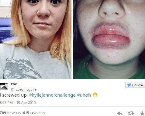Kyliejennerchallenge Dick Sucking Lips